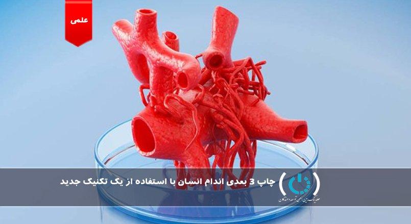چاپ ۳ بعدی اندام انسان با استفاده از یک تکنیک جدید