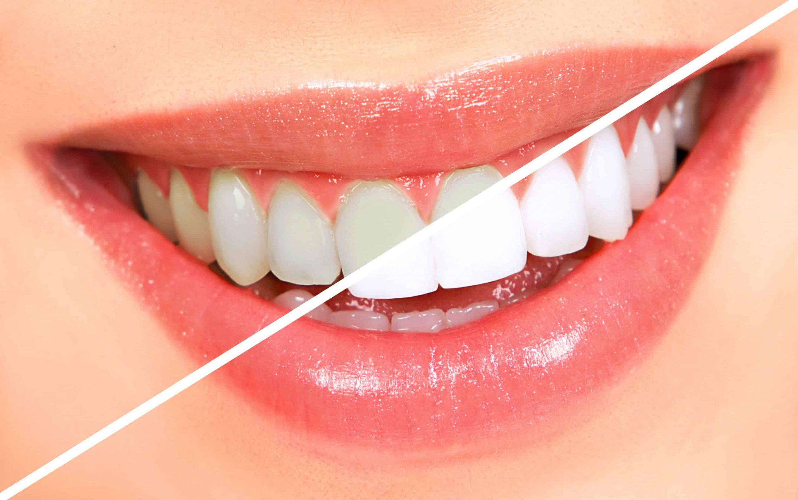 نحوه سفید کردن دندان ها در خانه