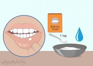 راه های خلاصی از شرّ تاول های دهان